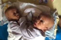 9 bébés siamois sur dix sont des filles
