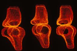 Un implant vivant et en 3D pour régénérer le cartilage