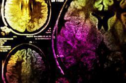 Le cerveau se développe encore à l'âge adulte