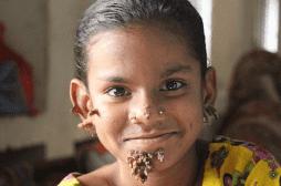 Une fillette atteinte de la même maladie que