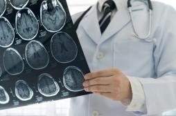 Cancer: l'intelligence artificielle peut prédire l'efficacité de l'immunothérapie