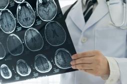 Pourquoi la Covid-19 augmente le risque d'accident vasculaire cérébral ?
