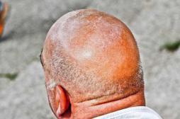 Propolis : la nouvelle piste des chercheurs contre la calvitie