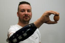 PREMIERE. Une main bionique aussi efficace qu'une greffe