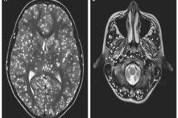 Ces tâches blanches dans le cerveau d'un homme étaient en fait des dizaines de larves