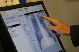 La bronchite chronique du fumeur, un mal insidieux
