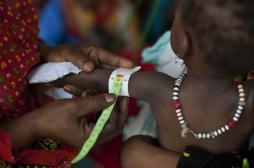Malnutrition infantile : MSF remet en cause le recours systématique aux antibiotiques