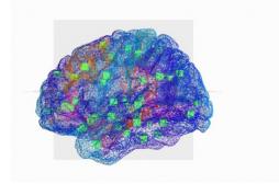 Epilepsie :  mieux traiter la maladie grâce à un cerveau