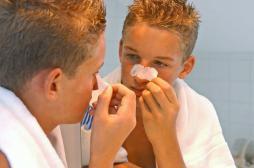 Acné sévère : deux tiers des patients ne profiteront pas de l'été