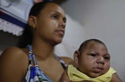 Zika : un premier lien établi avec la microcéphalie