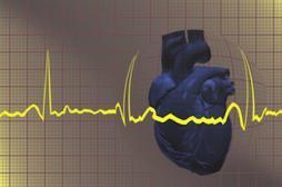Le zona avant 40 ans associé à un risque d'infarctus