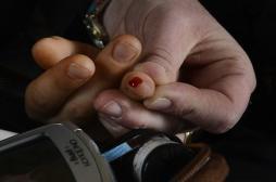 Herpès : détecter le virus avec un test sanguin