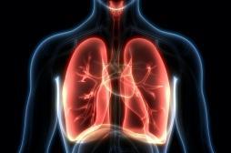 L'hyperventilation facilite le traitement par radiothérapie des arythmies cardiaques