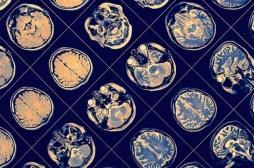 Schizophrénie : les patients auraient tous des fonctionnements cérébraux différents