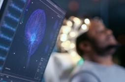 L'intelligence artificielle pourrait détecter la maladie d'Alzheimer six ans avant un diagnostic humain