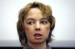 Isabelle Dinoire : décès de la première greffée du visage