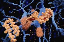 Alzheimer : les plaques bêta-amyloïdes protégeraient le cerveau au lieu de le détruire