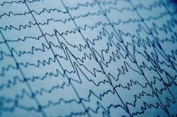 Pour la première fois, des ondes cérébrales détectées dans des cerveaux artificiels