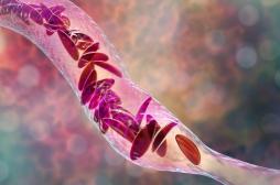 La drépanocytose, première maladie génétique en France