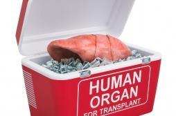 Une Américaine décède après une transplantation de poumons infectés par la Covid-19