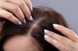 Syndrome de Raiponce : une ado se perfore l'estomac à force de manger ses cheveux