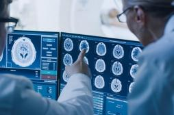 Troubles mentaux : il serait possible de mesurer l'empathie dans un cerveau au repos