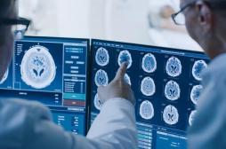 Comment agit une anesthésie générale sur le cerveau ?