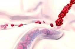 Drépanocytose : une maladie génétique pas si rare mais largement méconnue en France