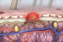 Mélanome : les traitements ciblés allongent la survie jusqu'à 5 ans