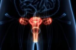 Cancer de l'ovaire : souvent silencieux, parfois héréditaire