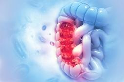 Cancer colorectal : les métastases se répandent avant que la tumeur ne soit détectable