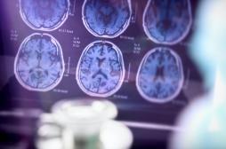 Alzheimer : une nouvelle découverte sur la structure du cerveau ouvre des pistes de traitement