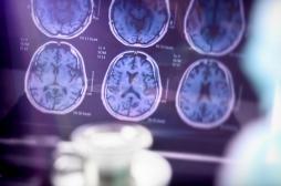 Alzheimer : une hyperactivation du cerveau est un signe précoce