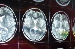Catherine Deneuve hospitalisée: quels sont les différents types d'AVC?