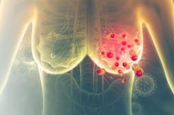 Cancer du sein : un test pour analyser les variants du gène BRCA2