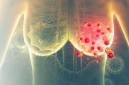 Cancer du sein métastatique : les soins de support sont essentiels