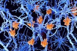 Sclérose en plaques : des problèmes de santé récurrents peuvent être une alerte