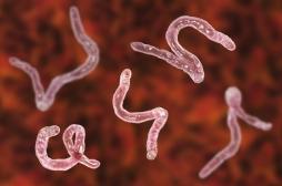 Des larves découvertes dans le cerveau d'une Australienne : le ténia sévit aussi en France