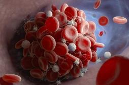 Une nouvelle technique pour repérer les caillots sanguins