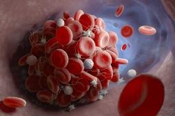 Covid-19: un premier cas de caillots sanguins récurrents dans le bras