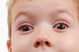 Des ophtalmologues alertent sur de graves brûlures aux yeux chez des enfants à cause du gel hydro-alcoolique