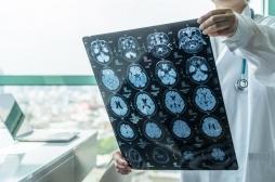 Tumeurs cérébrales : des biopsies 3D pour mieux les étudier
