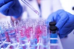 Coronavirus : pourquoi les tests sont-il négatifs chez certaines personnes infectées ?