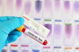 Coronavirus : pourquoi sommes-nous loin des 700 000 tests par semaine promis par Edouard Philippe?