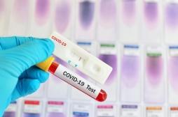 Test Covid : attention au faux négatif s'il est effectué trop tôt