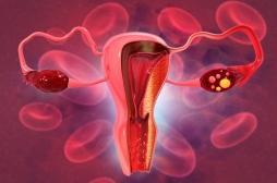 Journée mondiale du cancer de l'ovaire :
