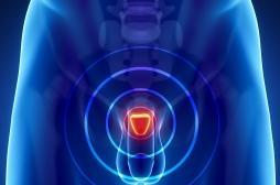 L'IRM plus efficace que la biopsie dans le diagnostic du cancer de la prostate