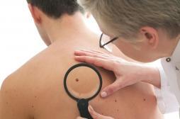 Cancer de la peau : le dépistage précoce augmente les chances de survie