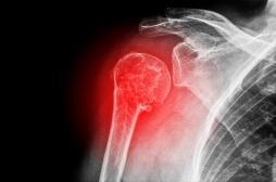 Se casser l'épaule en tombant de sa hauteur peut être le signe d'une ostéoporose