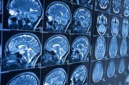 Maladie de Parkinson: l'immunothérapie, le nouvel espoir des malades